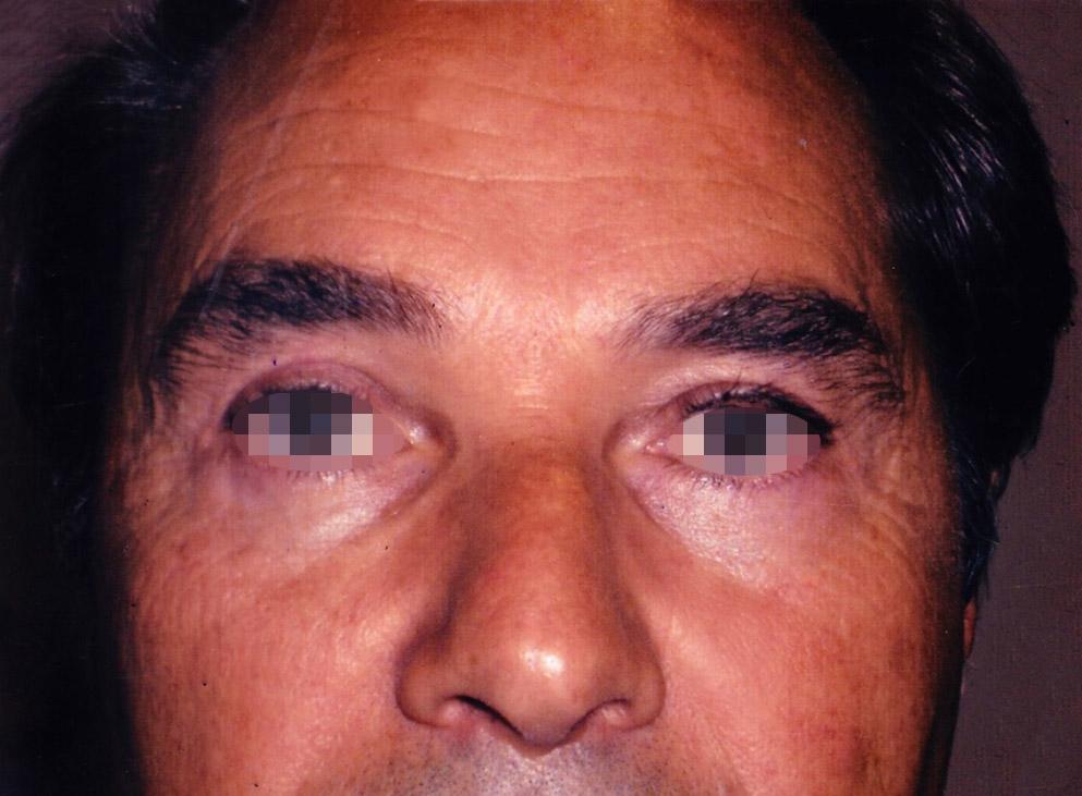 Photo paupières après blépharoplastie avec le chirurgien