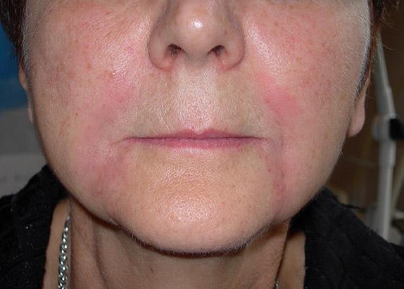 Photo après injections d'acide hyaluronique par le chirurgien
