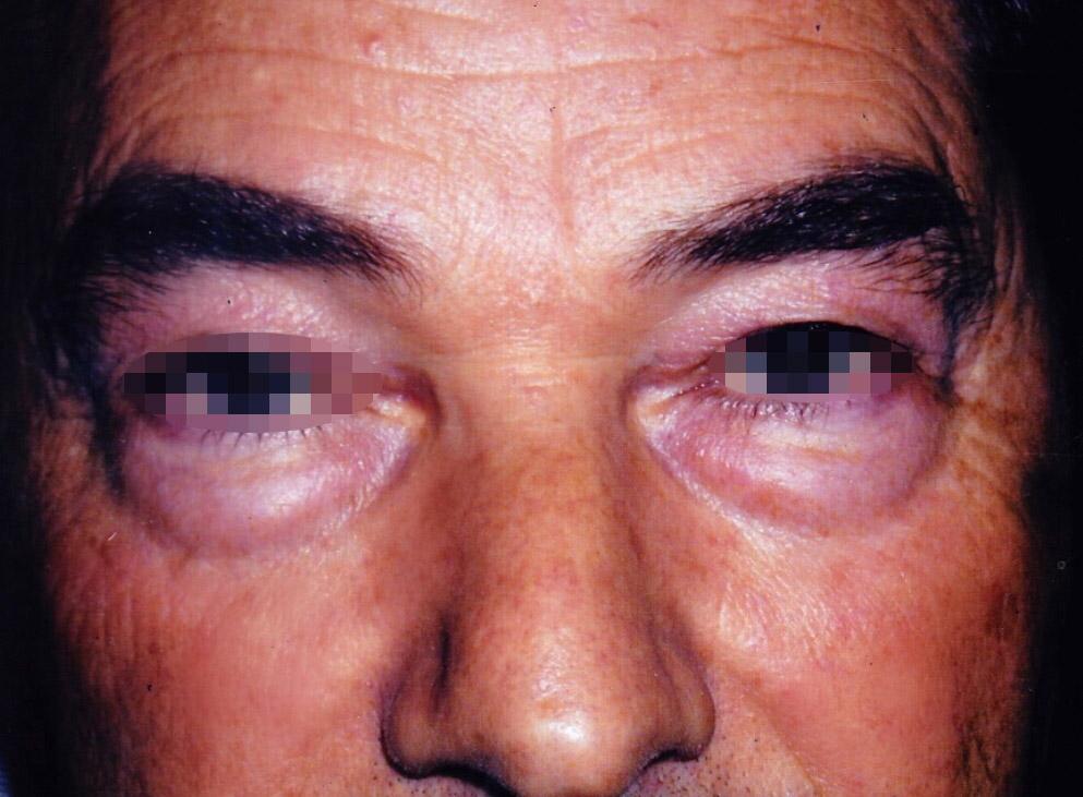 Photo paupières avant blépharoplastie avec le chirurgien