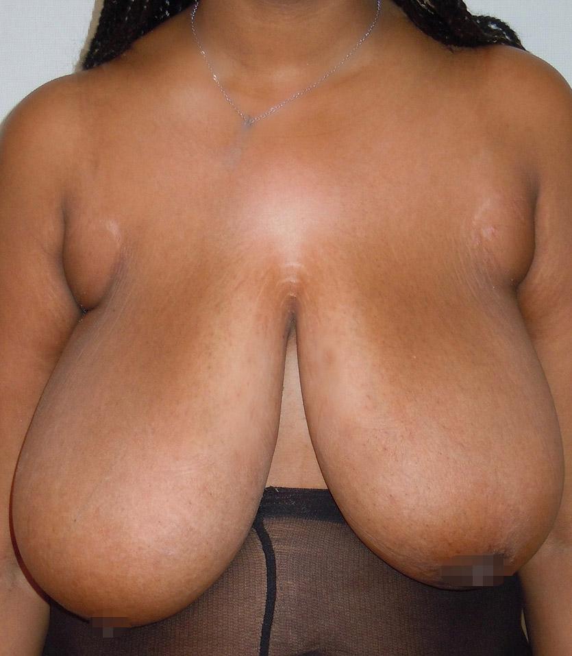 Photo seins après réduction mammaire avec le chirurgien