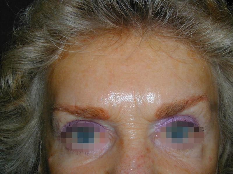 Photo après injection de botox dans le visage par le chirurgien