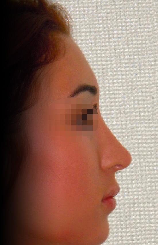 Photo nez après rhinoplastie avec le chirurgien