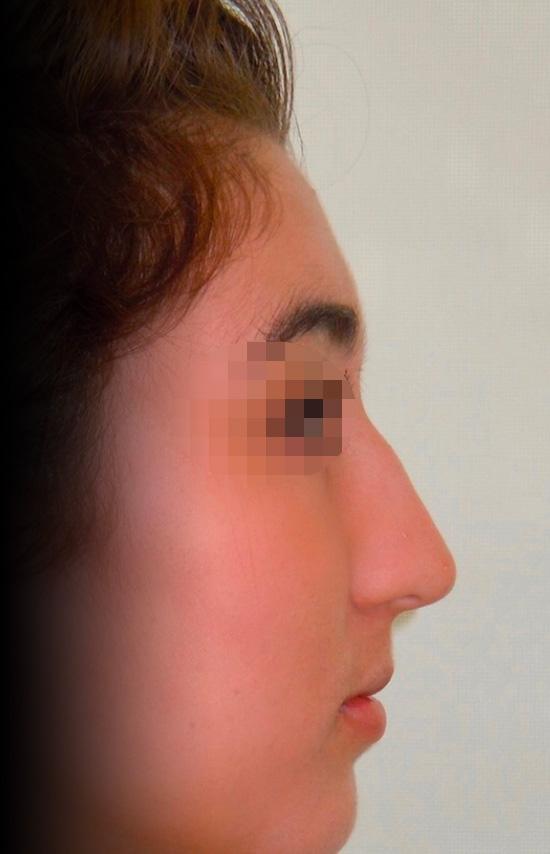 Photo nez avant rhinoplastie avec le chirurgien