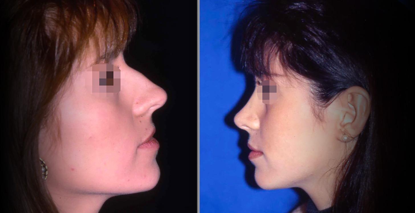 Photo nez avant et après rhinoplastie avec le chirurgien