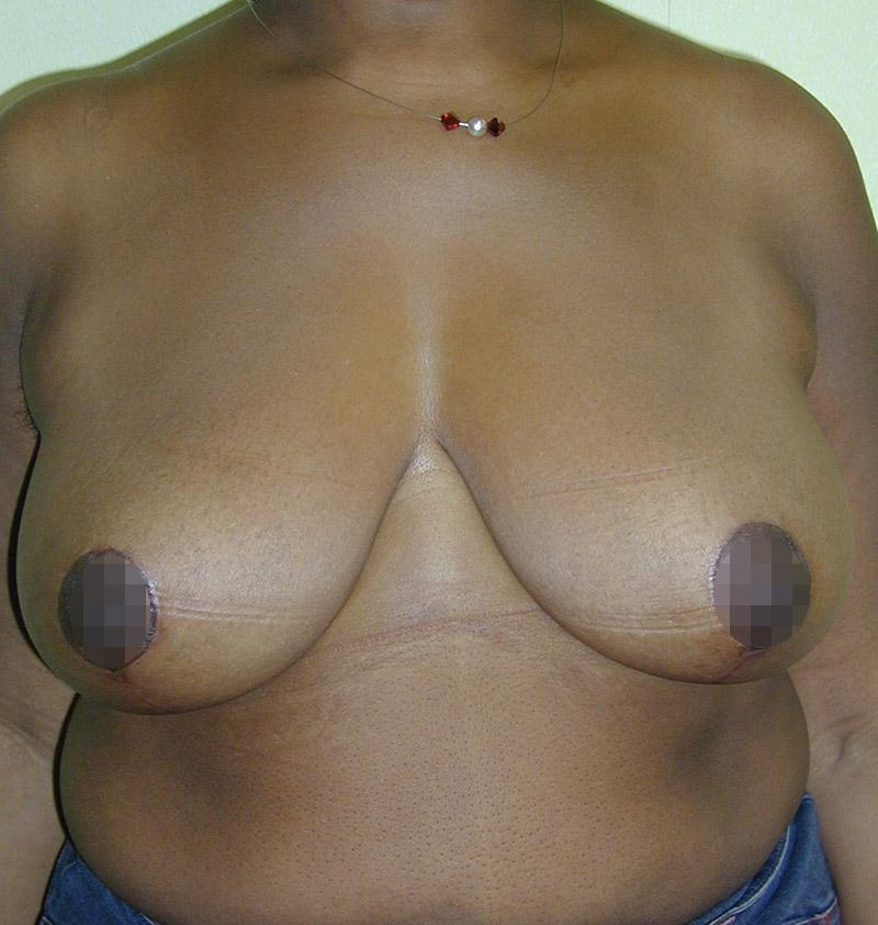 Photo ptose mammaire après opération du chirurgien