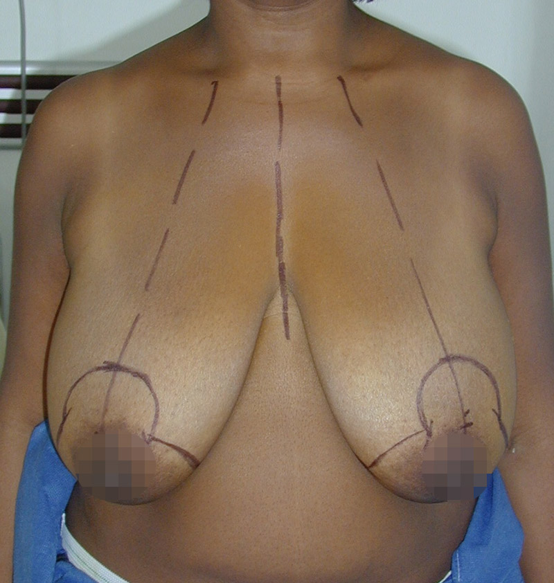 Photo ptose mammaire avant opération du chirurgien
