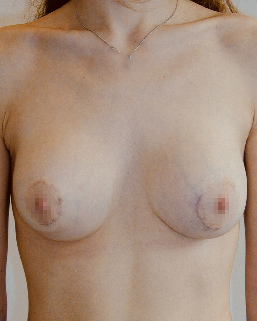 Photo seins tubereux après opération du chirurgien