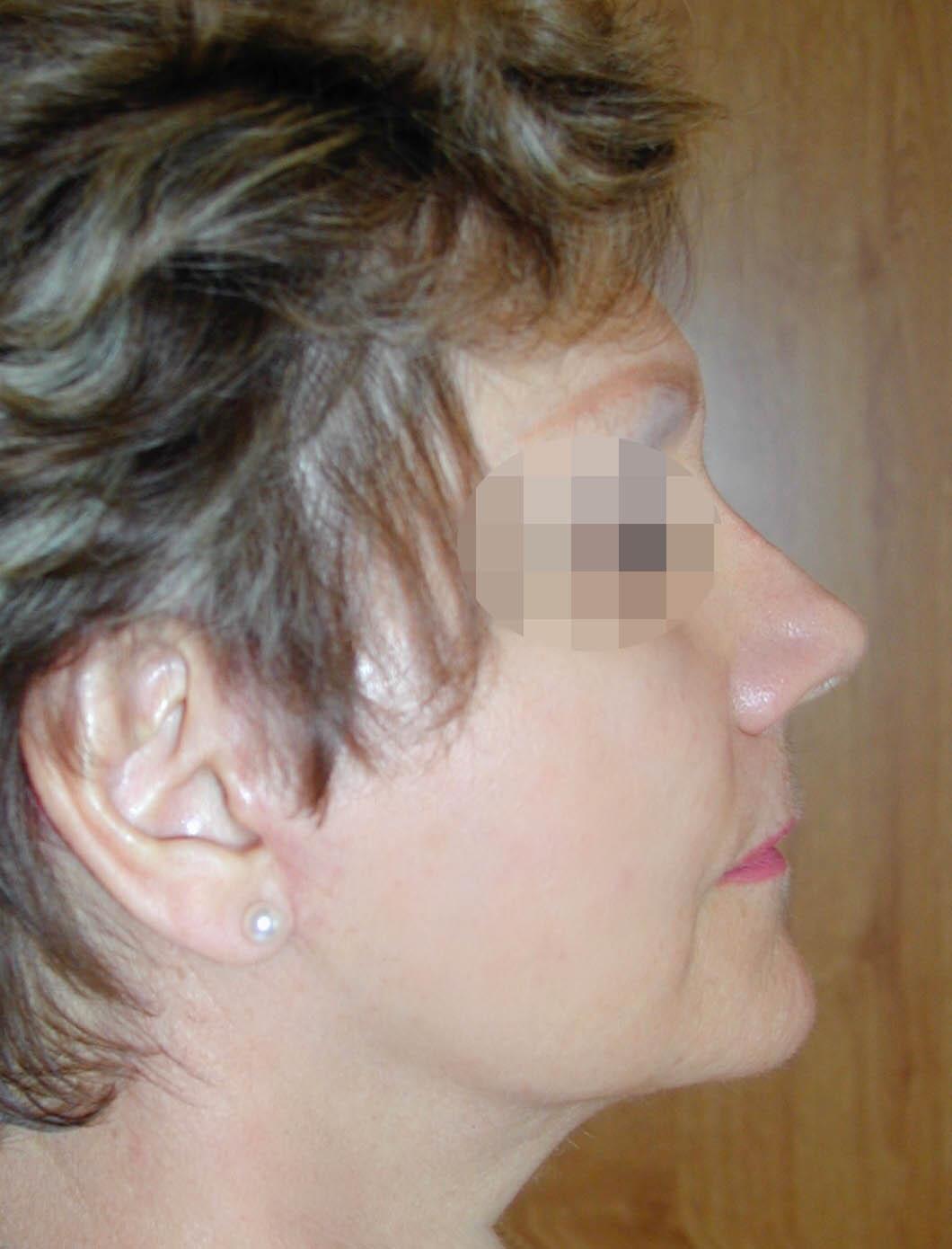 Photo visage après lifting avec le chirurgien