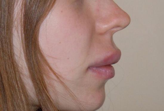 Photo après injections pour augmentation des lèvres par le chirurgien