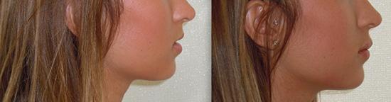 Photos avant et après injections pour augmentation des lèvres par le chirurgien