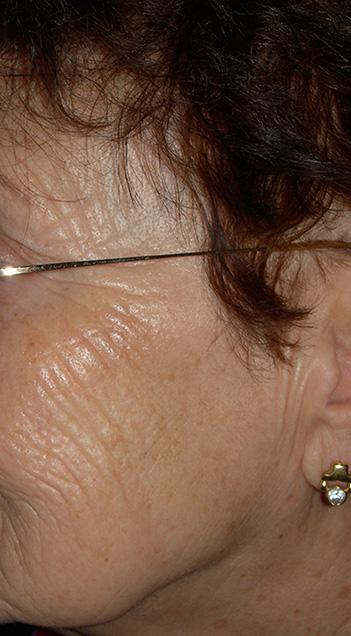Photo après traitement des tâches de la peau par le chirurgien