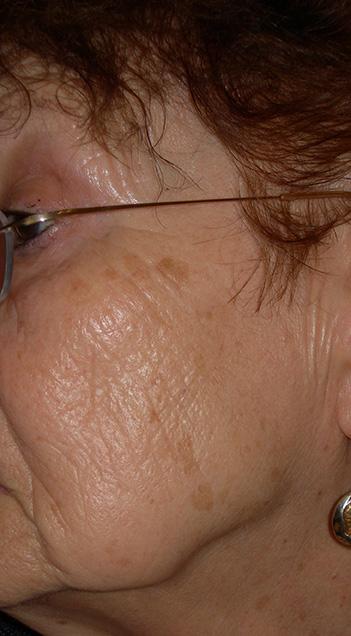 Photo avant traitement des tâches de la peau par le chirurgien